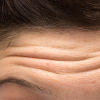 Anti Wrinkle Injections Eternal Youth Medical Aesthetics 01