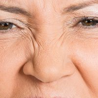 Anti Wrinkle Injections Eternal Youth Medical Aesthetics 07